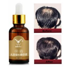 30ml Hair Growth Essence Liquid Chinese Medicine Herbal